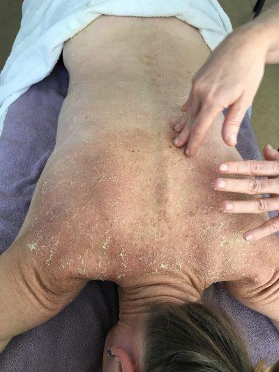 bindweefsel massage met honing